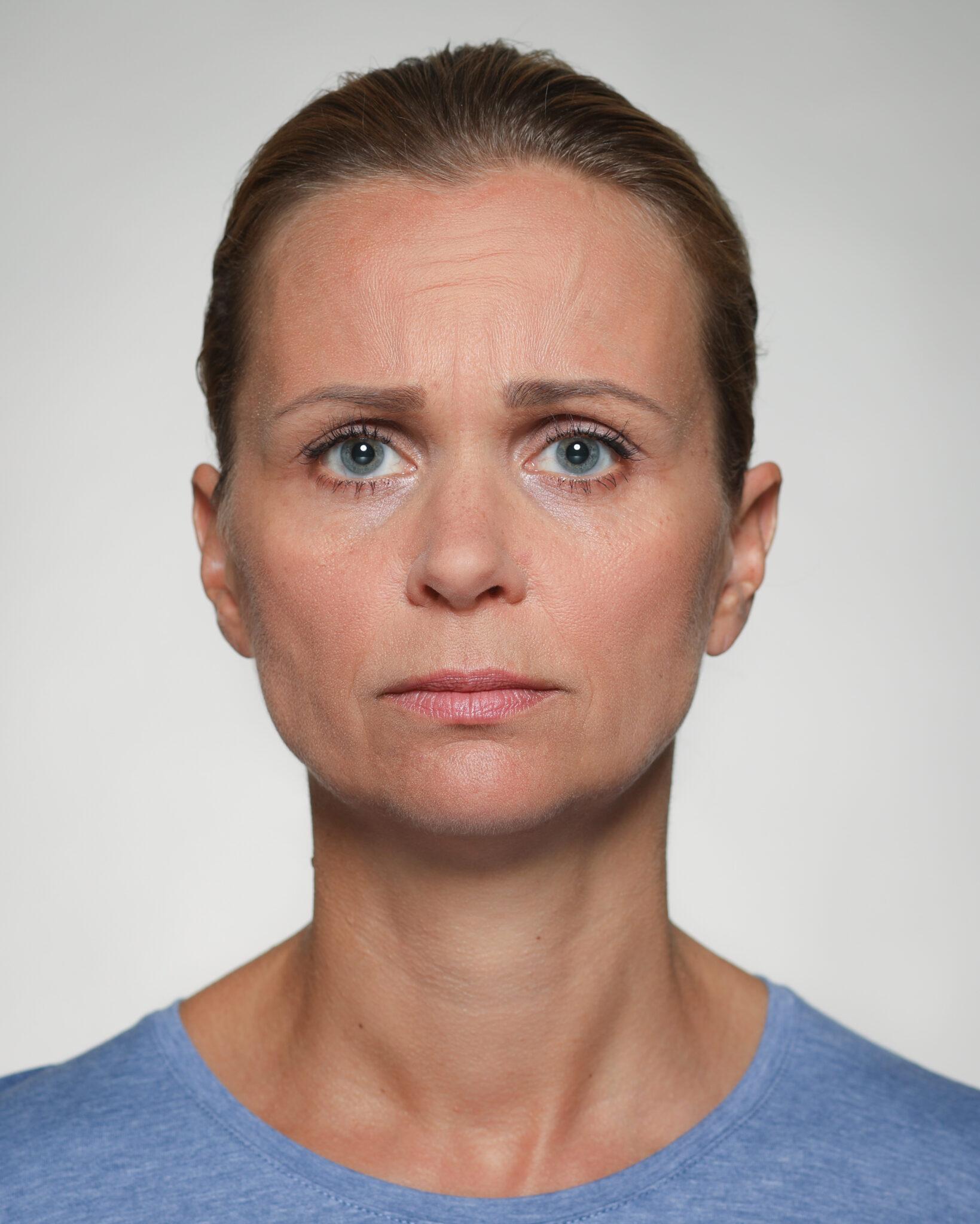 Augenbrauen-Innenseiten schräg hochziehen - Eilert-Akademie