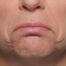 Facial Shrug
