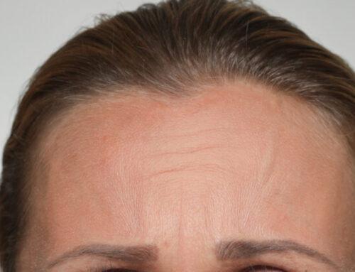 Augenbrauen-Innenseiten schräg hochziehen