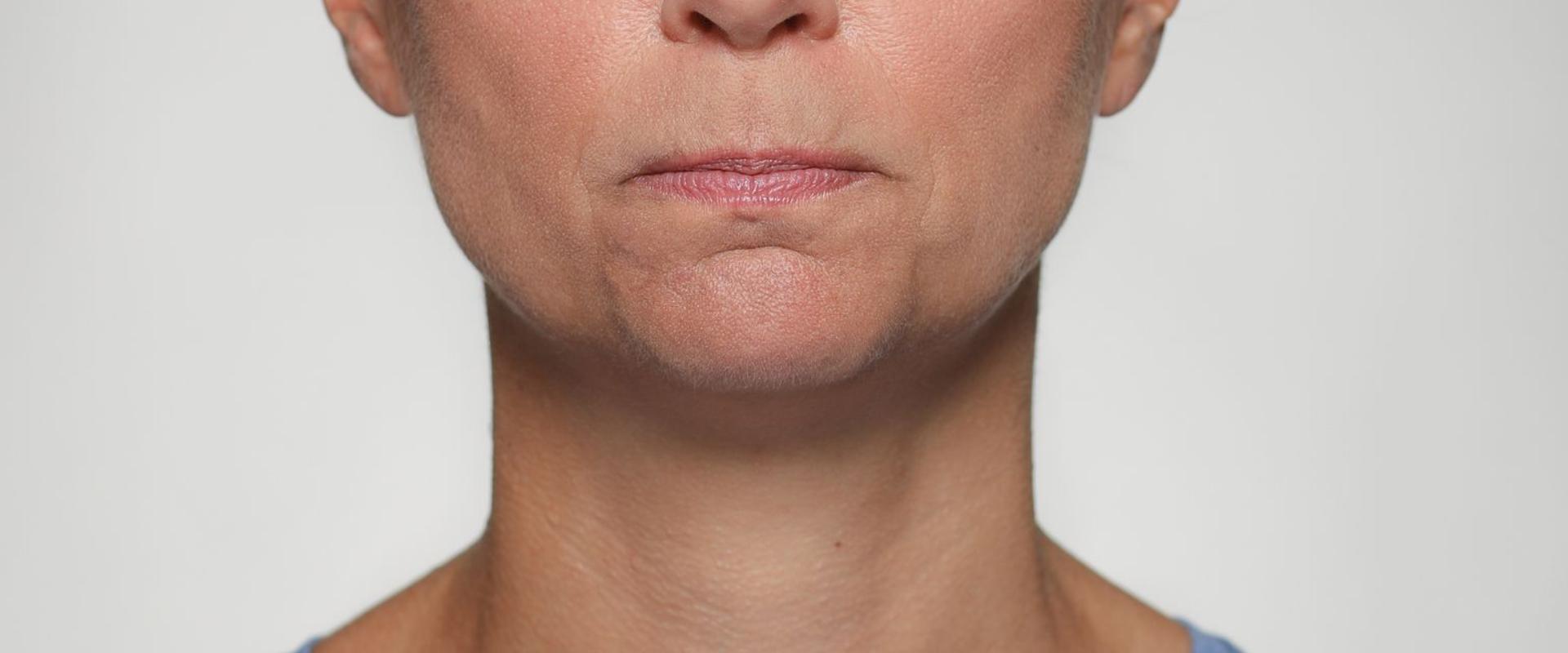 Gepresste Lippen - Eilert-Akademie