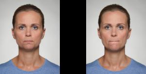 gepresste vs. eingezogene Lippen - Eilert-Akademie
